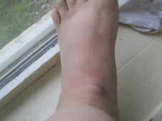 My poor foot is one huge bruise.