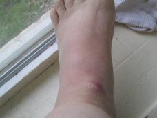 My poor foot is one huge bruise.