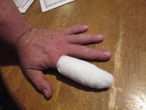 EJ's finger